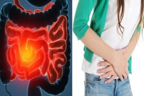 IBD symptoms worsened by common yeast in Crohn's disease