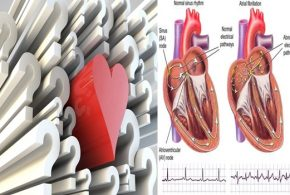 Paroxysmal atrial fibrillation, facts you need to know