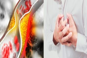 Researchers examine another approach to lower LDL cholesterol