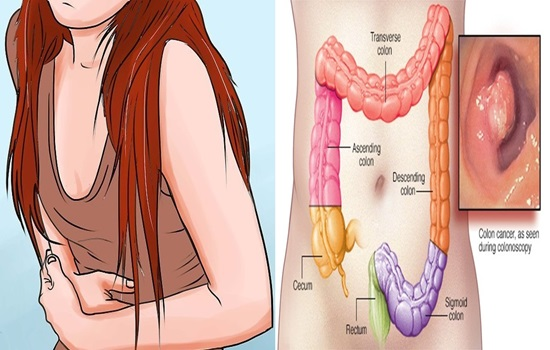 Style of life condition colon and rectal tumor risk more than hereditary qualities