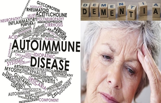 What's the connection between dementia and autoimmune conditions