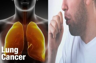 Lung cancer phases, facts you must know