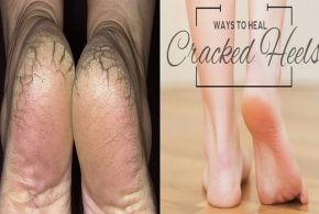 4 Easy Home Remedies To Heal Cracked Feet