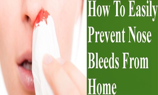 4 Natural Ways to Stop a Nose Bleed