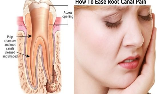 5 Effective Home Remedies For Root Canal Pain