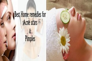 6 Amazing Home Remedies To Heal Acne Naturally