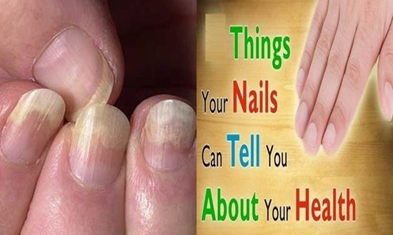 6 Things Your Nails Can Say About Health