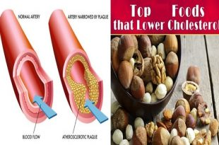 The best 6 Cholesterol-Lowering Snacks