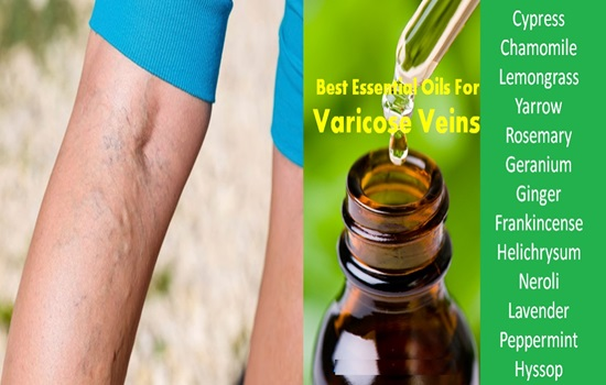Top 6 Essential Oils For Varicose Veins