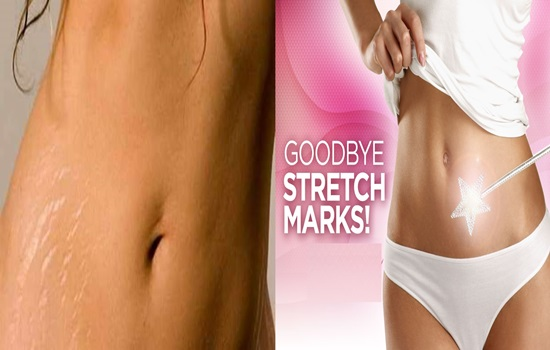 Pros And Cons Of Laser Stretch Marks Removal