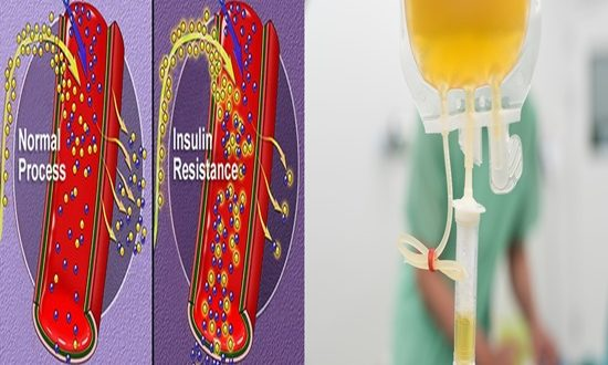 Adjusted insulin and red platelets used to control glucose