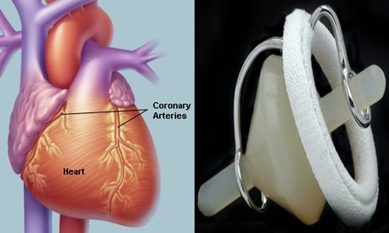 Designing heart valves for the numerous