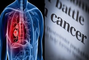 How can cancer surge the lungs?
