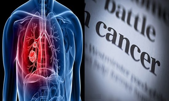 How can cancer surge the lungs