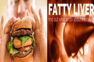 Obesity enhances hereditary danger of nonalcoholic fatty liver ailment