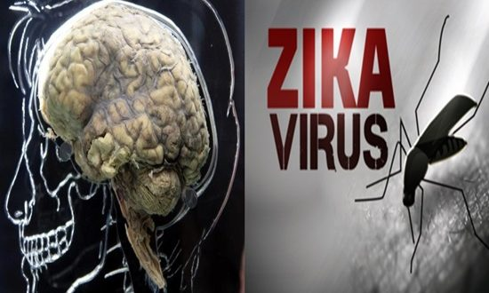Researchers to examine Zika infection on brain tumors