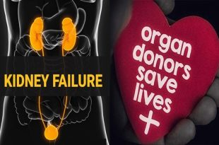 Risk of kidney failure found in in living donors