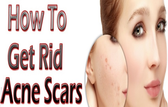 Say Goodbye To Acne Scars With These Natural Remedies