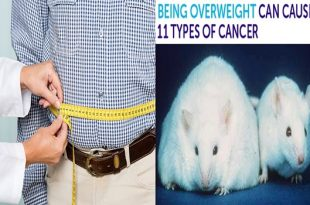 11 Types of Cancer caused only by obesity, study Finds