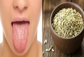 Best 4 Natural Ways To Get Rid Of Dry Mouth