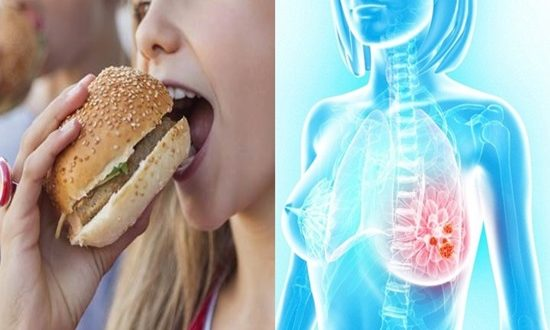 Breast cancer caused by unhealthy Diet in Teenagers
