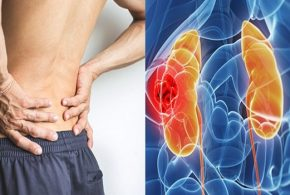 Five Signs of Kidney Cancer You Must Be Aware Of