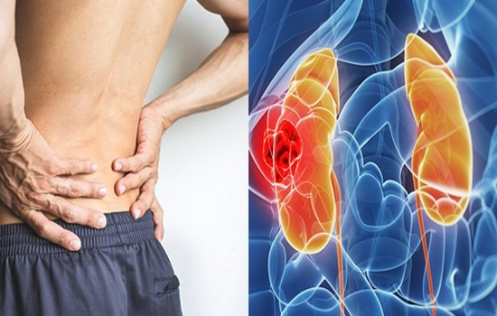 Five Signs of Kidney Cancer You Must Be Aware Of.