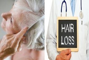 Menopausal Hair loss and What to Do About it