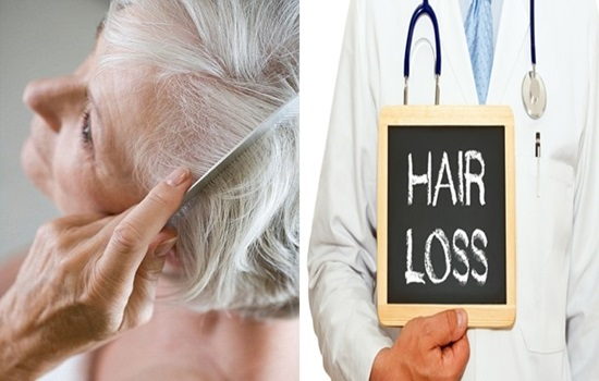 Menopausal Hair loss and What to Do About it.