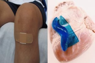 A new Strong adhesive for wound recovering