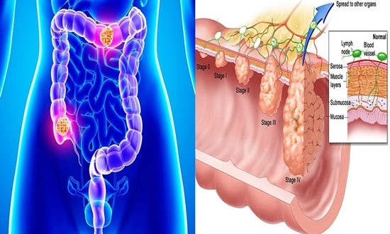 A new hope discovered for curing colon cancer