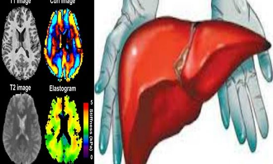 Brain and liver Ultrasound imaging