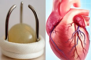 Less contamination in mechanical heart valves
