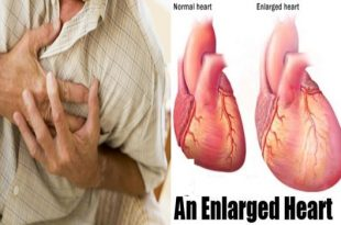 Main factor in heart enlargement distinguished