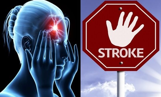 New Strategy for measuring stroke and decreasing risks in the future