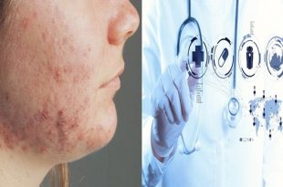 New hope for skin ailment Hidradenitis suppurativa
