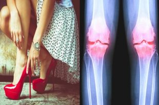 Osteoarthritis is found more in females; a liquid in the knees explains the reasons behind it