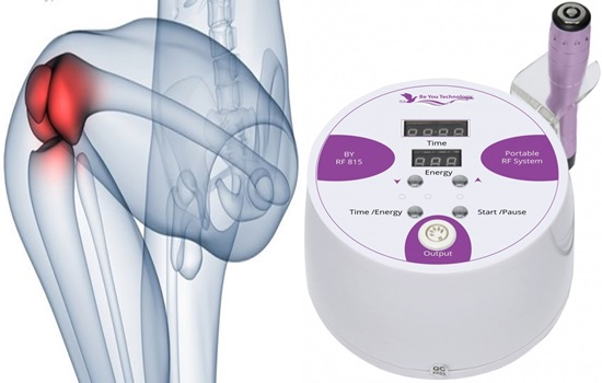 Radio energy useful in joint pain