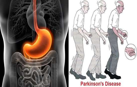 Upper GI tract diseases connected to Protein related with Parkinson's disease