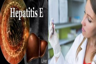 Would it be a good idea for us to be stressed over hepatitis E
