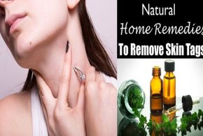 4 Brilliant Natural Ways To Remove Skin Tags At Home