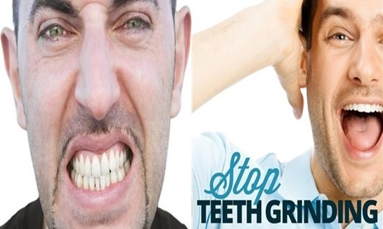 4 Natural Ways To Stop Teeth Grinding