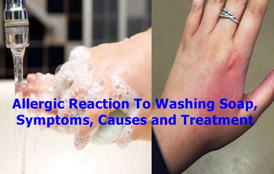 Allergic Reaction To Washing Soap Symptoms Causes and Treatment