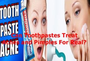 Can Toothpastes Treat Acnes and Pimples For Real?